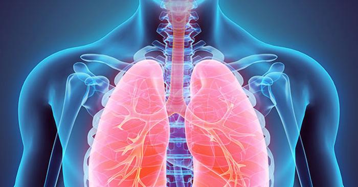 60% người mắc lao phổi có triệu chứng viêm họng ho ra máu