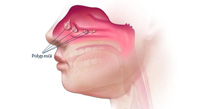Polyp mũi khiến người bệnh chảy nước mũi liên tục