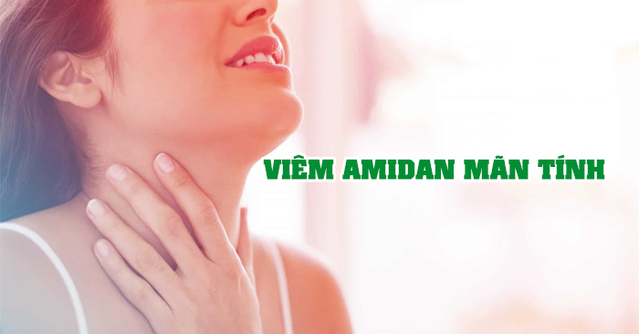 Viêm amidan mãn tính có những triệu chứng nặng và khó điều trị hơn so với giai đoạn cấp tính
