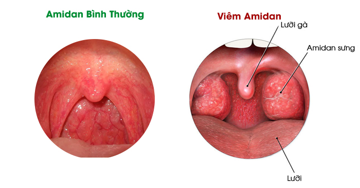 Viêm amidan là một trong những chứng bệnh thường gặp