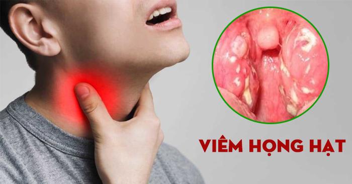 Viêm họng hạt và viêm họng hạt mãn tính là hai bệnh lý gây ảnh hưởng lớn đến cuộc sống