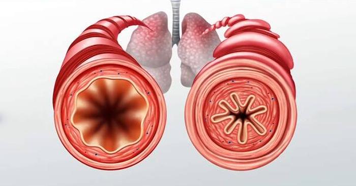 Viêm phế quản là một trong những bệnh lý về đường hô hấp phổ biến, có thể gặp ở mọi đối tượng