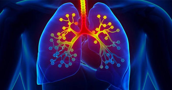 Viêm thanh khí phế quản là một trong những bệnh lý về đường hô hấp trên phổ biến