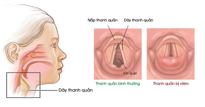 Người bệnh bị khàn giọng, giọng nói biến đổi và thậm chí là mất giọng khi bị viêm thanh quản
