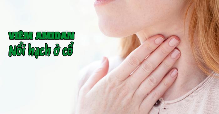 Viêm amidan nổi hạch là một trong những triệu chứng cảnh báo amidan đang bị viêm nhiễm nặng