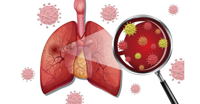 Viêm phổi có thể lây truyền từ người này sang người khác thông qua nhiều con đường khác nhau