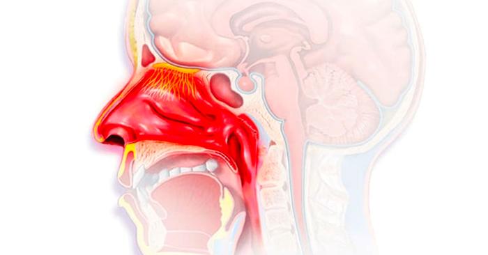 Viêm đường hô hấp trên